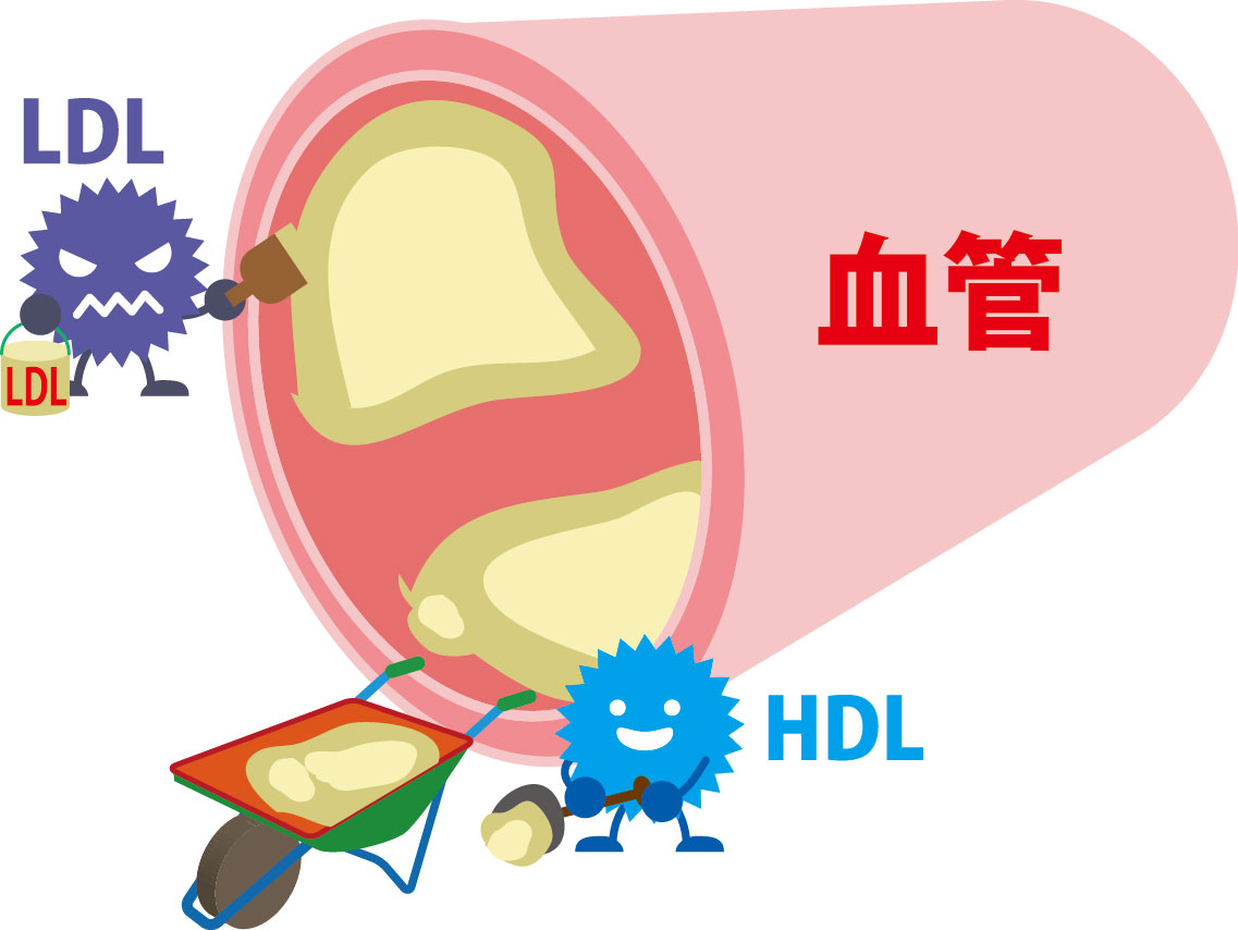 LDLコレステロールによる動脈硬化